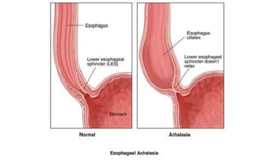 Achalasia-treatment-in-Delhi