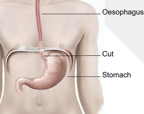 cardiomyotomy-in-delhi