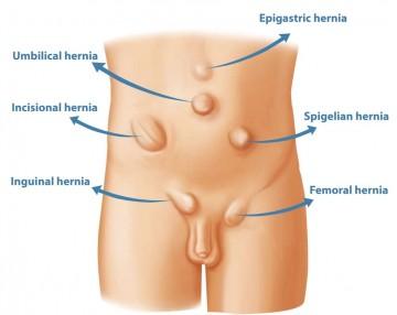 hernia-treatment-in-delhi